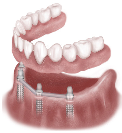 dental implant surgery in Hagerstown